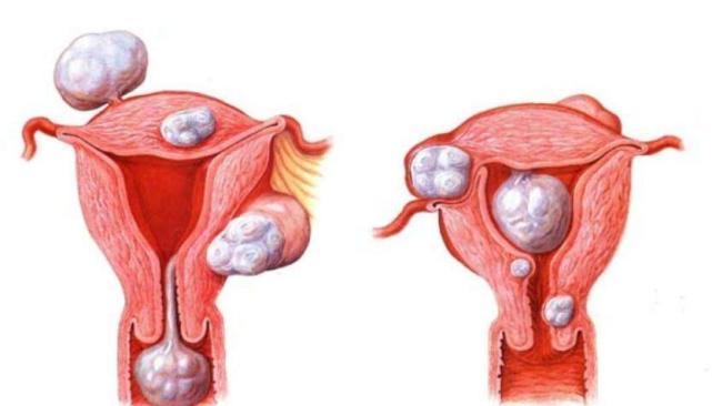 El mioma cervical: síntomas, causas y características del tratamiento